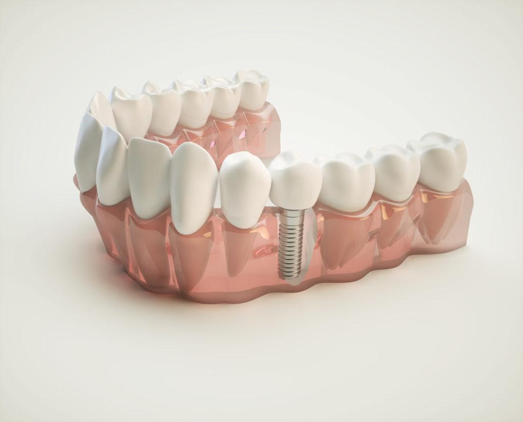 la mesa dental implant