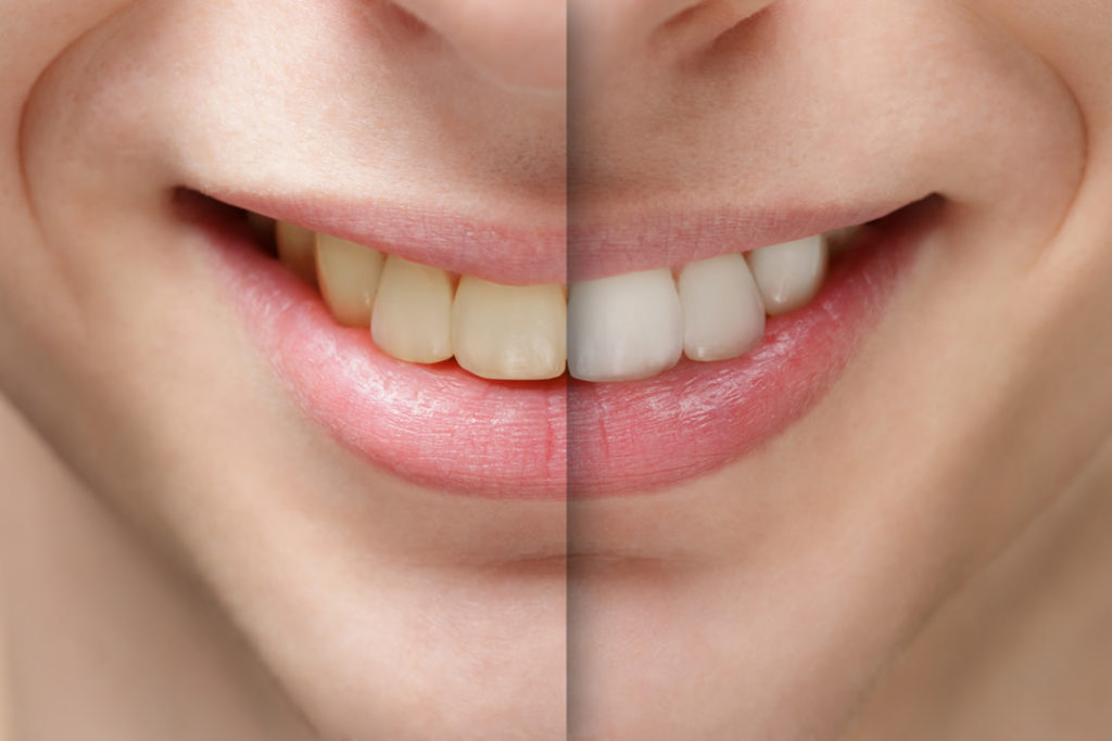 la mesa teeth whitening